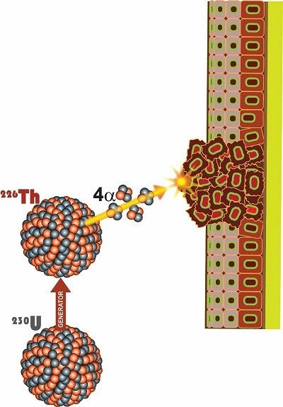 Alpha particle bombarded cancer tissue: a generator holds uranium-230 to produce thorium-226; further decay to short-lived daughters emits four more alpha particles resulting in a very high combined radiation dose delivered to cancer cells.