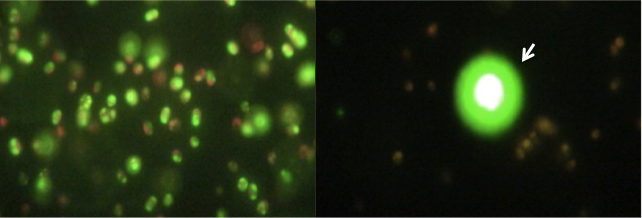 Lipid droplets before (left) and after (right) ultrasonic lysis | Photo courtesy of Los Alamos National Laboratory