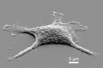 """The first stage of the """"zombie cell"""" only moderately heated, the cell is now pure silica and needed a gold coating for a scanning electron microscope to image it. 