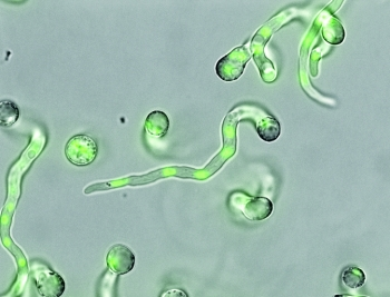 A view of Aspergillus niger with the fungus' DNA highlighted in green | Photo Courtesy of: PNNL.