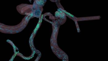 Blood flow visualization | Photo Courtesy of Argonne National Laboratory
