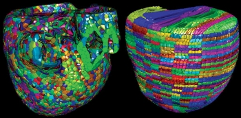 The Cardioid code developed by a team of Livermore and IBM scientists divides the heart into a large number of manageable pieces, or subdomains. The development team used two approaches, called Voronoi (left) and grid (right), to break the enormous computing challenge into much smaller individual tasks. | Photo from the Lawrence Livermore National Laboratory