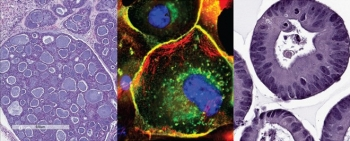 Cancer cells. Image courtesy of the NCI Patient Derived Models Repository (pdmr.cancer.gov)