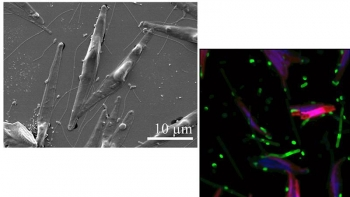 (left) The diatom Phaeodactylum tricornutum and flagellated bacteria. (right) Researchers studied P. tricornutum enriched in carbon-13 (red) derived from fixation of labeled carbon dioxide and bacterial symbionts enriched in nitrogen-15 (green).